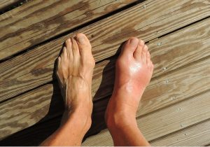 Foot Doctor In Ronkonkoma